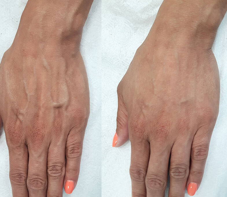 Starzenie się dłoni