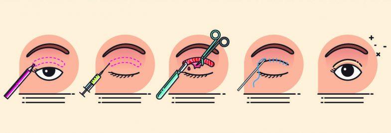 Blefaroplastyka